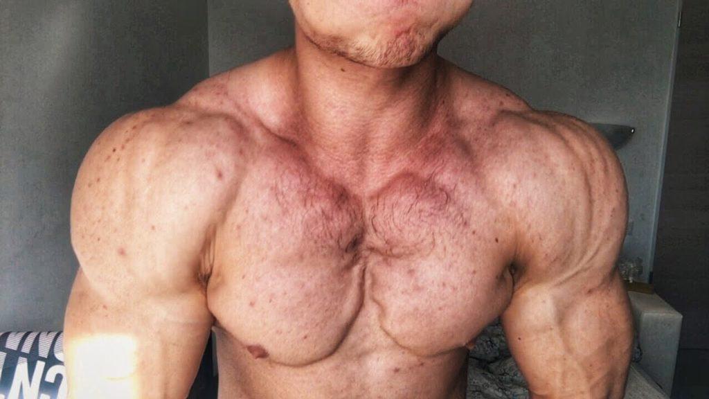 Анаболические пероральные стероиды и печень